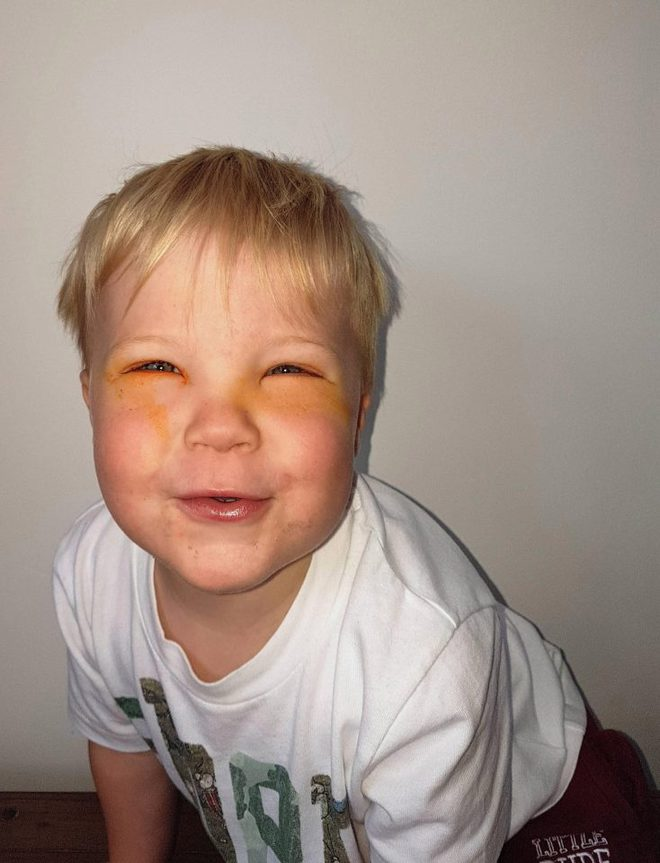 Bé trai 2 tuổi bị mù tạm thời vì mẹ nhuộm tóc - Ảnh 3.