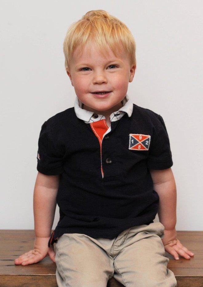 Bé trai 2 tuổi bị mù tạm thời vì mẹ nhuộm tóc - Ảnh 4.
