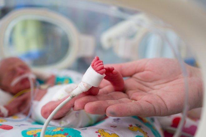 Thêm những lợi ích to lớn của việc trì hoãn cắt dây rốn sau sinh - Ảnh 2.