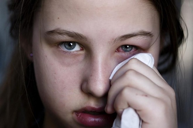 8 dấu hiệu cho thấy đôi mắt bạn gặp vấn đề nên cần đi khám ngay - Ảnh 2.