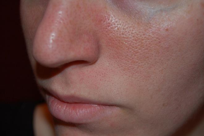 Sự thật về lỗ chân lông trên da mặt khiến bạn phải bất ngờ - Ảnh 1.