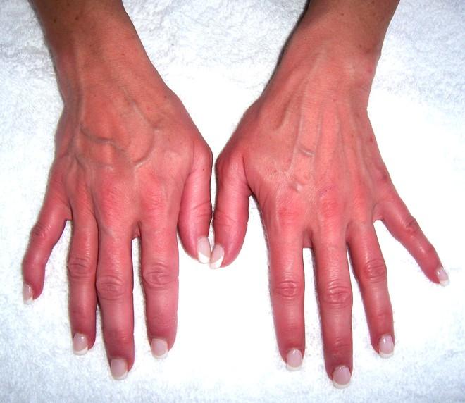 Nhìn tay bắt bệnh: 30 vấn đề sức khỏe sẽ thể hiện rõ qua vẻ ngoài của bàn tay - Ảnh 2.