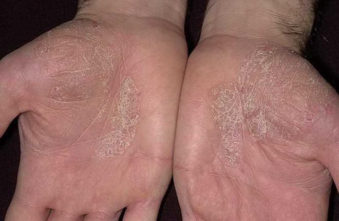 Nhìn tay bắt bệnh: 30 vấn đề sức khỏe sẽ thể hiện rõ qua vẻ ngoài của bàn tay - Ảnh 3.