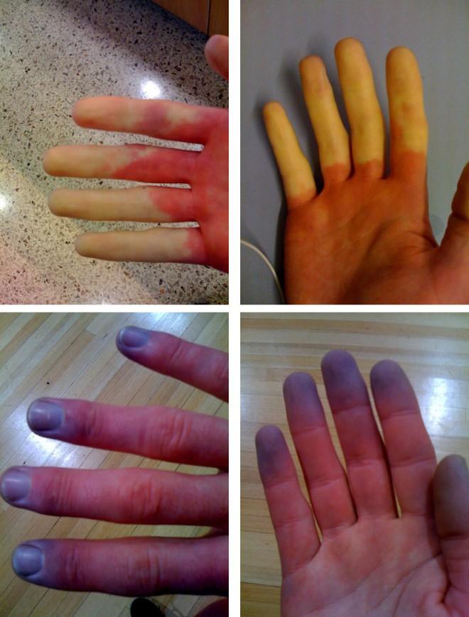 Nhìn tay bắt bệnh: 30 vấn đề sức khỏe sẽ thể hiện rõ qua vẻ ngoài của bàn tay - Ảnh 4.