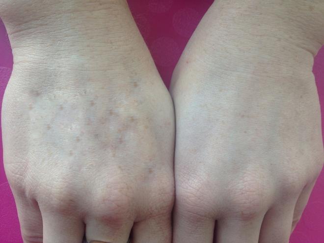 Nhìn tay bắt bệnh: 30 vấn đề sức khỏe sẽ thể hiện rõ qua vẻ ngoài của bàn tay - Ảnh 7.