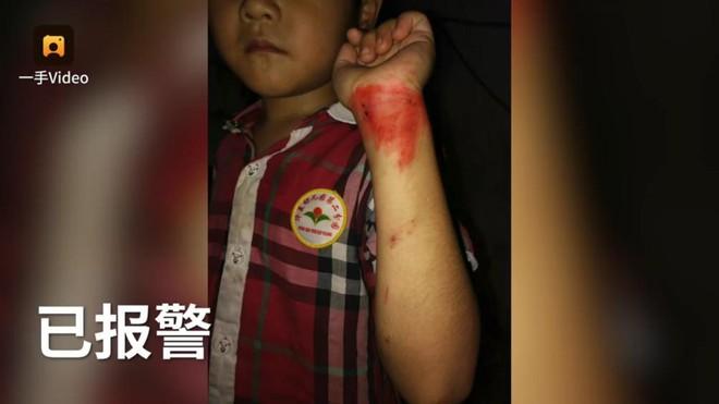 Phóng xe máy như bay lao vào người bé trai, cách hành xử sau đó của cặp nam nữ gây phẫn nộ - Ảnh 2.