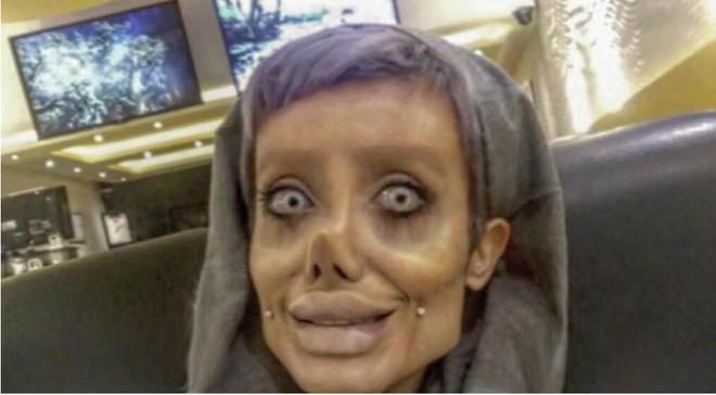 Trước khi phẫu thuật thẩm mỹ 50 lần, cô gái có gương mặt giống Angelina Jolie đã từng xinh đẹp như thế này - Ảnh 1.