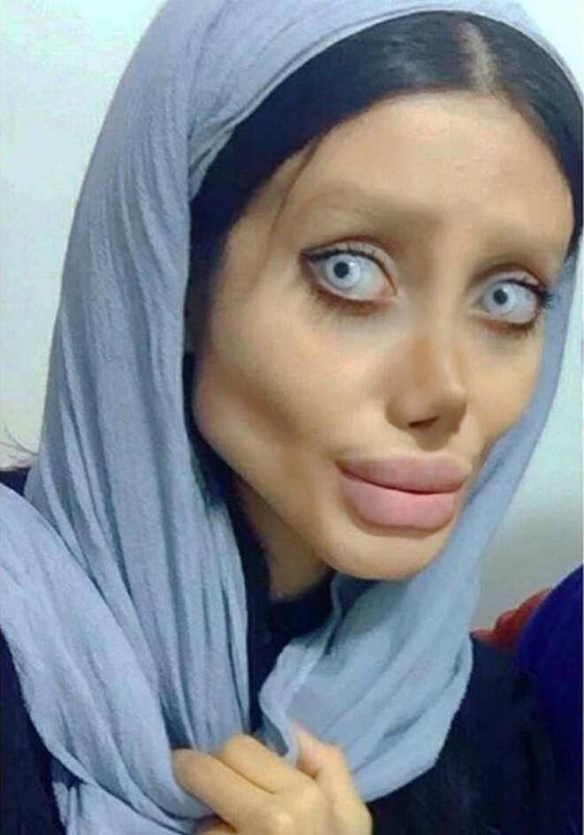 Trước khi phẫu thuật thẩm mỹ 50 lần, cô gái có gương mặt giống Angelina Jolie đã từng xinh đẹp như thế này - Ảnh 2.