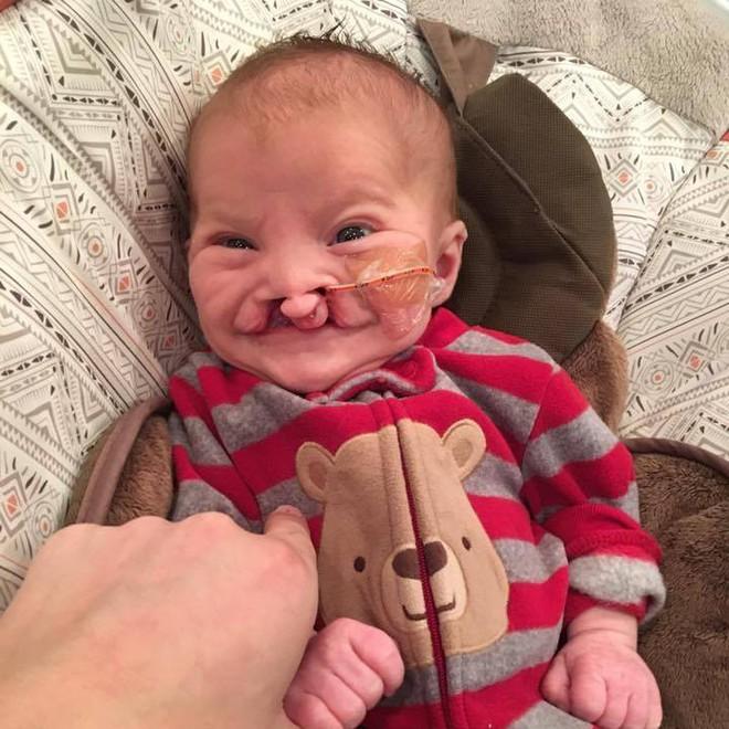Con bị dị tật nhưng nhất quyết giữ đến cùng, nhiều tháng sau, người mẹ nhận được một thứ khiến cô rơi nước mắt - Ảnh 3.