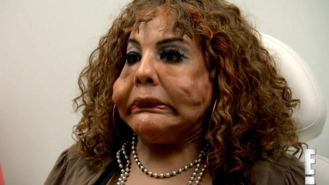 """Bị """"lang băm thẩm mỹ"""" bơm xi măng vào mặt, người phụ nữ biến dạng đến mức ai nhìn cũng phát khiếp - Ảnh 2."""