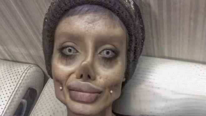 Trước khi phẫu thuật thẩm mỹ 50 lần, cô gái có gương mặt giống Angelina Jolie đã từng xinh đẹp như thế này - Ảnh 11.