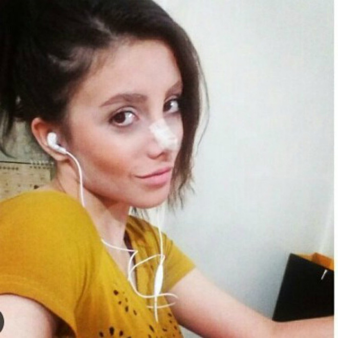Cô gái phẫu thuật thẩm mỹ hơn 50 lần để nhìn giống Angelina Jolie, kết quả trả về gia tinh Dobby - Ảnh 7.
