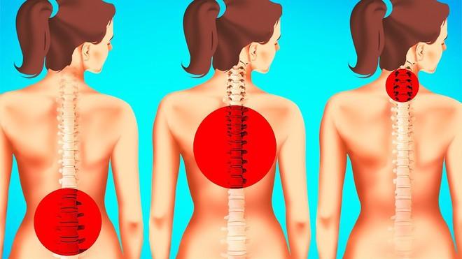 Nếu không muốn bị đau lưng và cổ do tư thế của cơ thể không đúng, đừng quên những điều này - Ảnh 1.