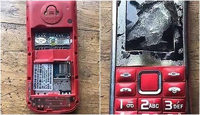 Cậu bé mất một ngón tay và một mắt vì dùng điện thoại khi đang sạc pin, thêm một lời cảnh báo nữa cho tất cả mọi người - Ảnh 5.