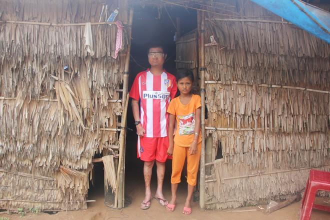 Bố mất chưa giỗ đầu thì mẹ qua đời, em gái 10 tuổi đau đớn nhìn anh trai mắc bệnh hiểm nghèo mà không có tiền chữa - Ảnh 2.
