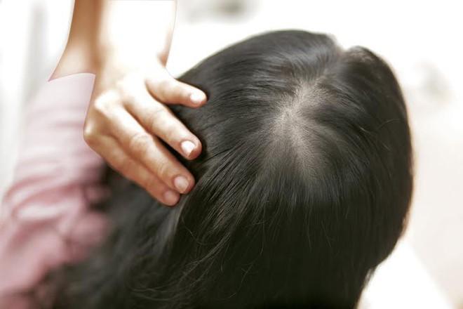 Bắt bệnh qua 5 dấu hiệu bất thường rất dễ nhận biết ngay trên mái tóc của bạn - Ảnh 1.