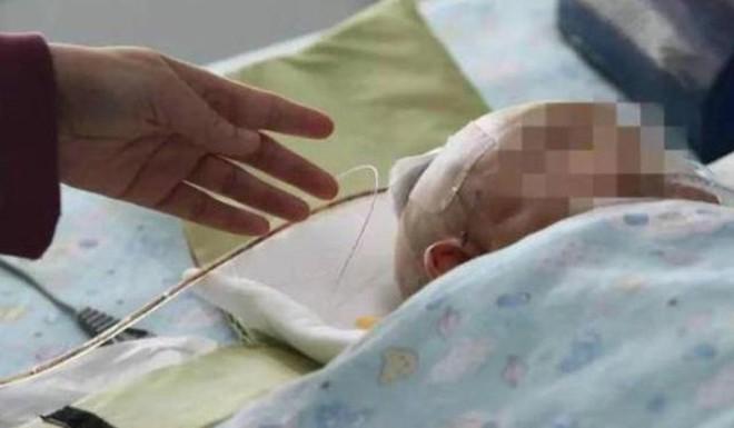 Bé sơ sinh rơi vào hôn mê sau khi bị bé gái 11 tuổi ném quả táo từ tầng 24 chung cư vào đầu - Ảnh 2.