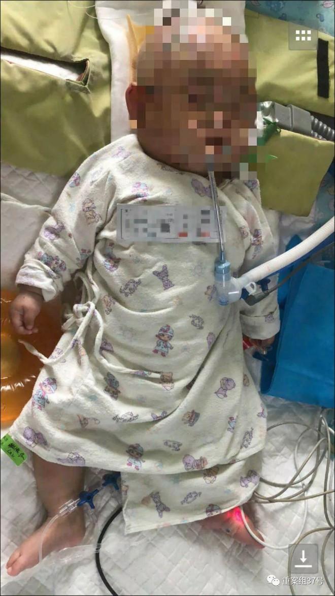 Bé sơ sinh rơi vào hôn mê sau khi bị bé gái 11 tuổi ném quả táo từ tầng 24 chung cư vào đầu - Ảnh 3.