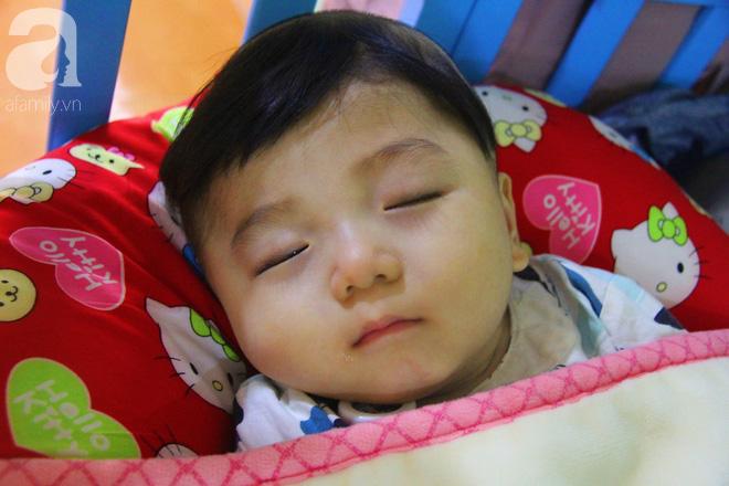 Tình hình hiện tại của bé não úng thủy Đức Lộc cùng với hơn 100 đứa trẻ bị bố mẹ bỏ rơi ở mái ấm Đức Quang - Ảnh 4.