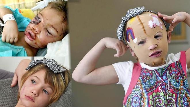 Bị chó cắn đến nát mặt, cô bé 6 tuổi mỗi ngày đều phải chụp ảnh tự sướng để học cách chấp nhận diện mạo mới của mình - Ảnh 4.