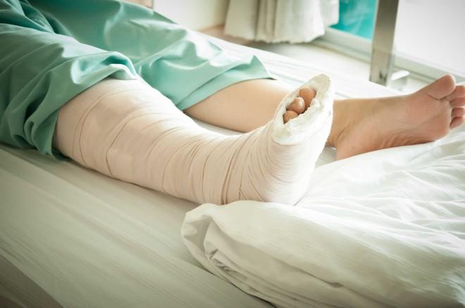 Không may bị gãy xương, bạn cần làm ngay điều này nếu không muốn gặp biến chứng nguy hiểm - Ảnh 5.