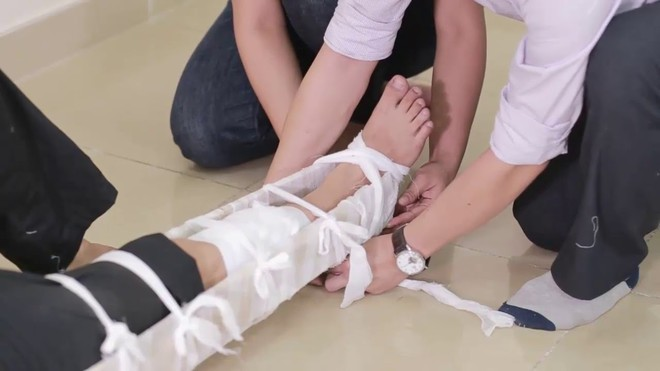 Không may bị gãy xương, bạn cần làm ngay điều này nếu không muốn gặp biến chứng nguy hiểm - Ảnh 4.