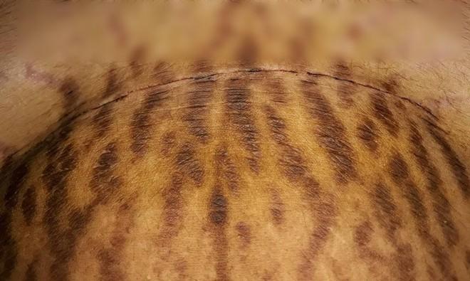 Mẹ 9x chia sẻ những vết rạn sau sinh chằng chịt như đàn giun bò lên bụng - Ảnh 4.