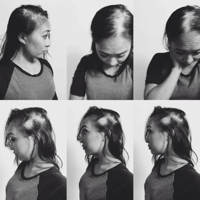 Tình yêu cảm động người phụ nữ gốc Việt: Nhờ rụng sạch tóc trên đầu mà nhận ra được chân tình của người đàn ông bên cạnh - Ảnh 3.