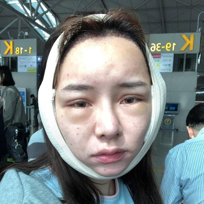 Sang Hàn 3 ngày PTTM, Angela Baby phiên bản chuyển giới mắc kẹt tại hải quan vì gương mặt sưng phù - Ảnh 2.