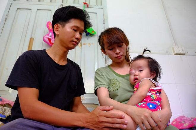 Bé gái gõ cửa 12 bệnh viện để chữa bệnh u mắt hiếm gặp đã sang Singapore tìm phép màu - Ảnh 1.
