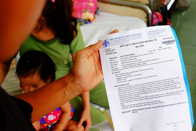 Bé gái gõ cửa 12 bệnh viện để chữa bệnh u mắt hiếm gặp đã sang Singapore tìm phép màu - Ảnh 2.