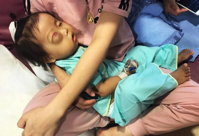 Bé gái gõ cửa 12 bệnh viện để chữa bệnh u mắt hiếm gặp đã sang Singapore tìm phép màu - Ảnh 7.