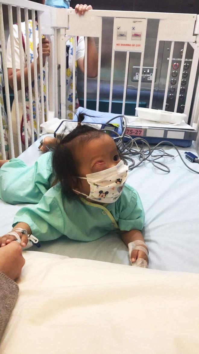 Bé gái gõ cửa 12 bệnh viện để chữa bệnh u mắt hiếm gặp đã sang Singapore tìm phép màu - Ảnh 9.