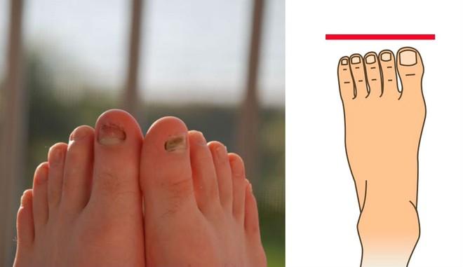 Nhìn xuống bàn chân mình xem chân bạn thuộc kiểu nào và tôi sẽ nói về bí mật tính cách con người bạn - Ảnh 3.