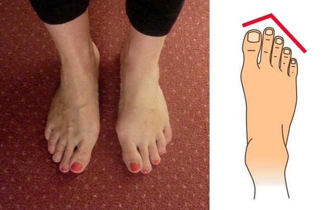 Nhìn xuống bàn chân mình xem chân bạn thuộc kiểu nào và tôi sẽ nói về bí mật tính cách con người bạn - Ảnh 4.