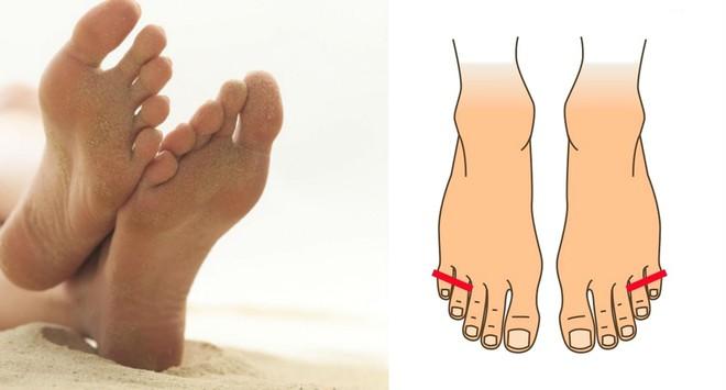Nhìn xuống bàn chân mình xem chân bạn thuộc kiểu nào và tôi sẽ nói về bí mật tính cách con người bạn - Ảnh 5.