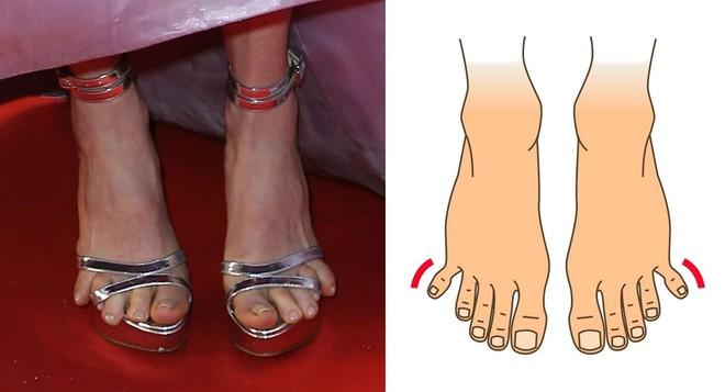 Nhìn xuống bàn chân mình xem chân bạn thuộc kiểu nào và tôi sẽ nói về bí mật tính cách con người bạn - Ảnh 6.