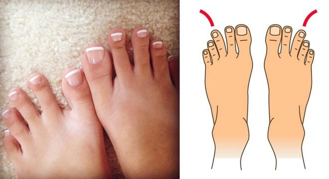 Nhìn xuống bàn chân mình xem chân bạn thuộc kiểu nào và tôi sẽ nói về bí mật tính cách con người bạn - Ảnh 8.