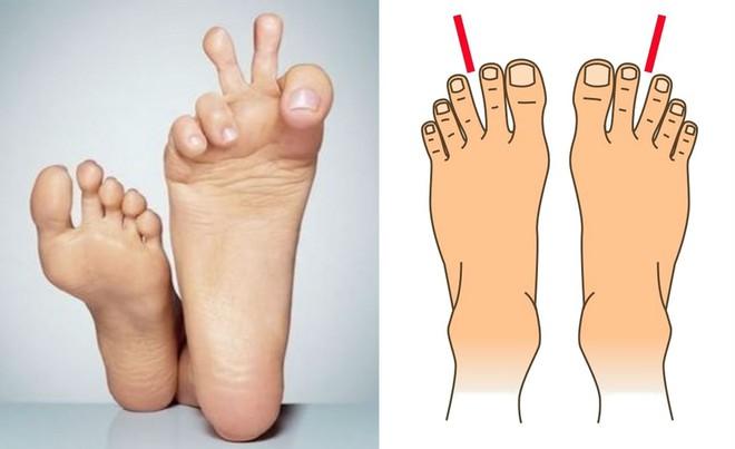 Nhìn xuống bàn chân mình xem chân bạn thuộc kiểu nào và tôi sẽ nói về bí mật tính cách con người bạn - Ảnh 9.