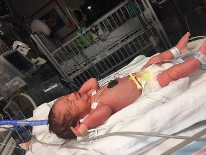 Con sinh ra được vài tháng có dấu hiệu kỳ lạ, bà mẹ phát hiện con đã đột quỵ từ lúc còn trong bụng mẹ và lập tức lên tiếng cảnh báo - Ảnh 2.