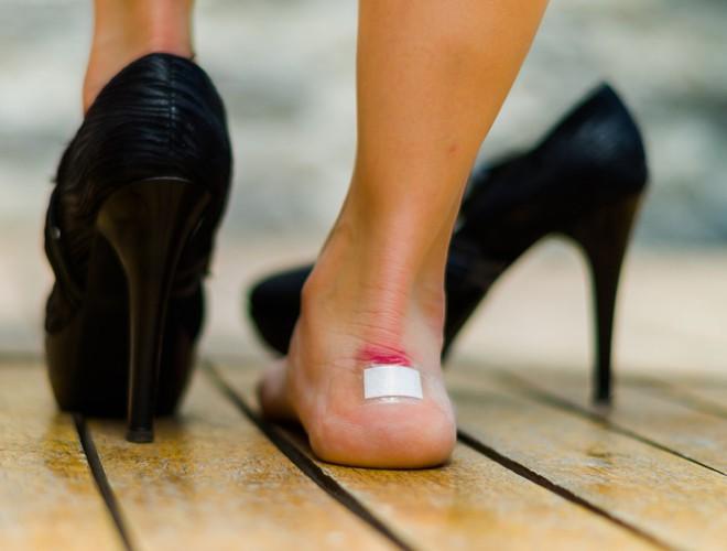 Đi giày cao gót thường xuyên có thể bị... liệt vì chèn ép dây thần kinh và gây nhiều hậu quả khác - Ảnh 1.