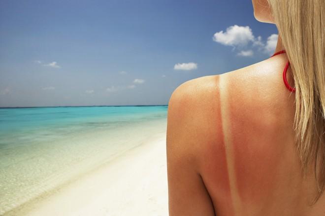 Sơ cứu khi bị cháy nắng, tránh biến chứng nguy hiểm cũng như mang lại tính thẩm mỹ cho làn da - Ảnh 3.