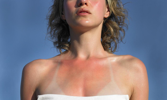Sơ cứu khi bị cháy nắng, tránh biến chứng nguy hiểm cũng như mang lại tính thẩm mỹ cho làn da - Ảnh 1.