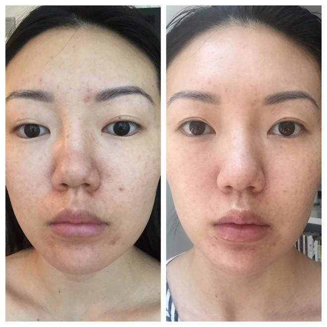Nhờ loại dụng cụ đơn giản, mà những vết rạn da của cô gái này đã biến mất chỉ sau 2 tuần sử dụng - Ảnh 9.