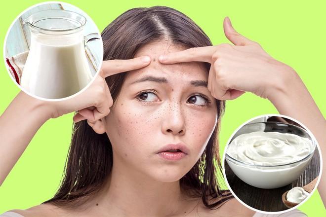16 nguyên liệu rẻ tiền nhưng có tác dụng thần kỳ giúp loại bỏ các vết nám và tàn nhang trên mặt - Ảnh 5.