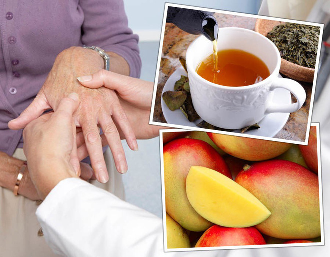 Hãy tạo cho mình những thói quen này hàng ngày để ngăn ngừa các triệu chứng đau khớp ở đầu gối, hông và bàn tay - Ảnh 2.