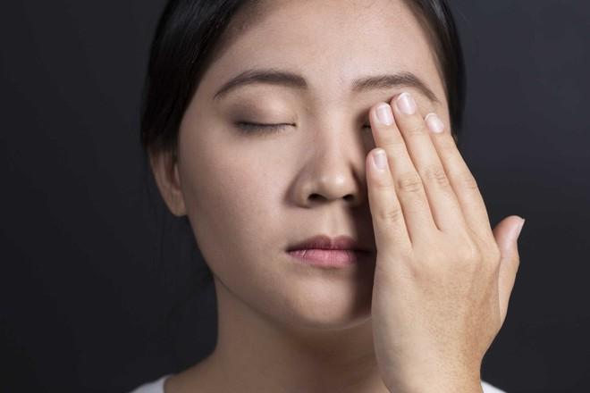 Sơ cứu khi bị dị vật rơi vào mắt, tránh nhiễm trùng mắt cũng như nguy cơ mù lòa - Ảnh 2.