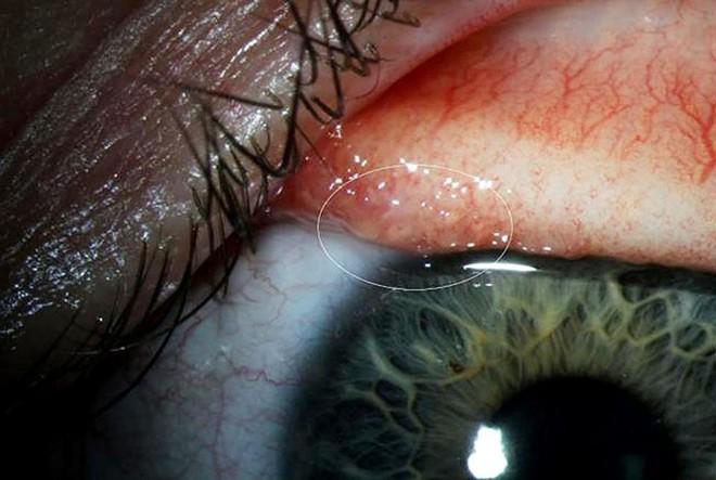 Sơ cứu khi bị dị vật rơi vào mắt, tránh nhiễm trùng mắt cũng như nguy cơ mù lòa - Ảnh 3.