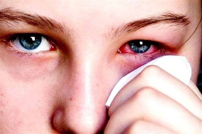 Dùng lá trầu không để xông khi đau mắt đỏ: Cẩn thận bệnh nặng càng thêm nặng! - Ảnh 3.