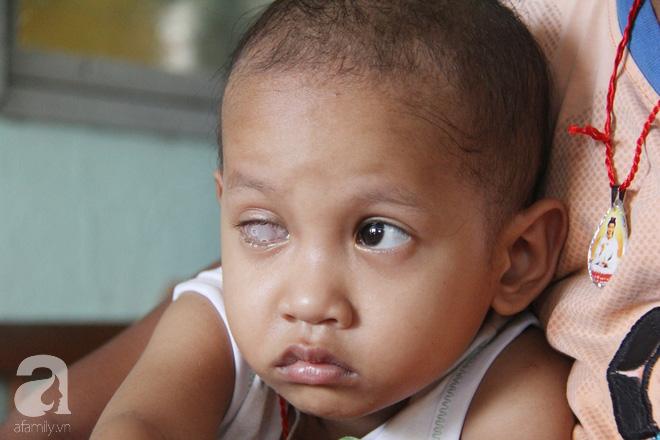 Bé gái 3 tuổi bị ung thư mắt, bố mẹ chở phân bò dành dụm từng đồng tìm lại ánh sáng cho con trong vô vọng - Ảnh 3.